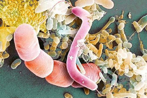 Сборище самых разных бактырий. Фото в электронный микроскоп.