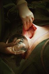 силиконовый имплант